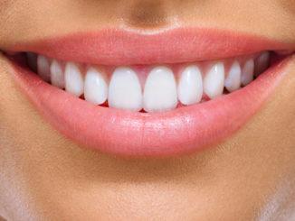 Sourire femme avec dents blanches