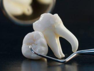 deux dents de sagesse et un outil du dentiste
